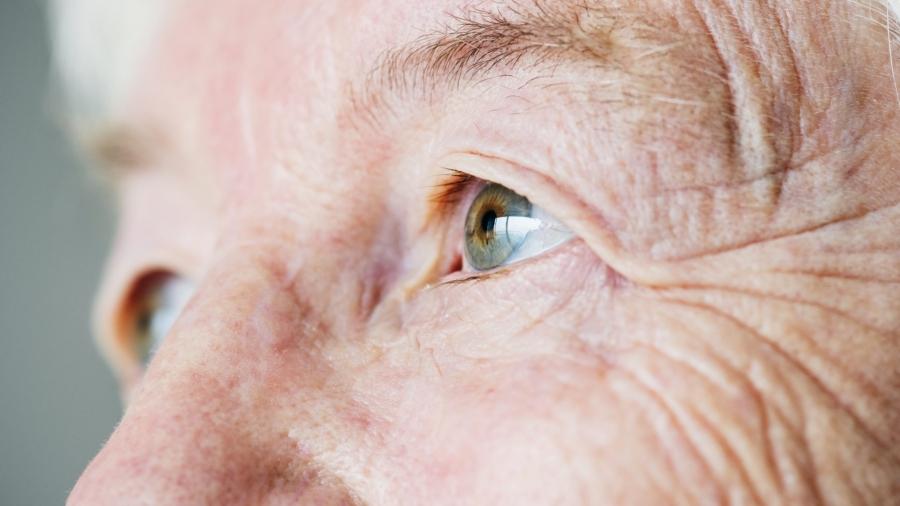 Tratamento do Glaucoma e Catarata em Curitiba