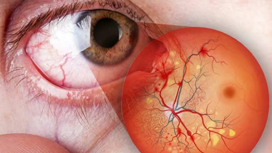 retinopatia diabética curitiba tratamento