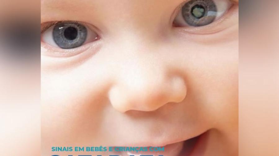 catarata e opacificação do cristalino ocular em curitiba cirurgia com lentes intraoculares