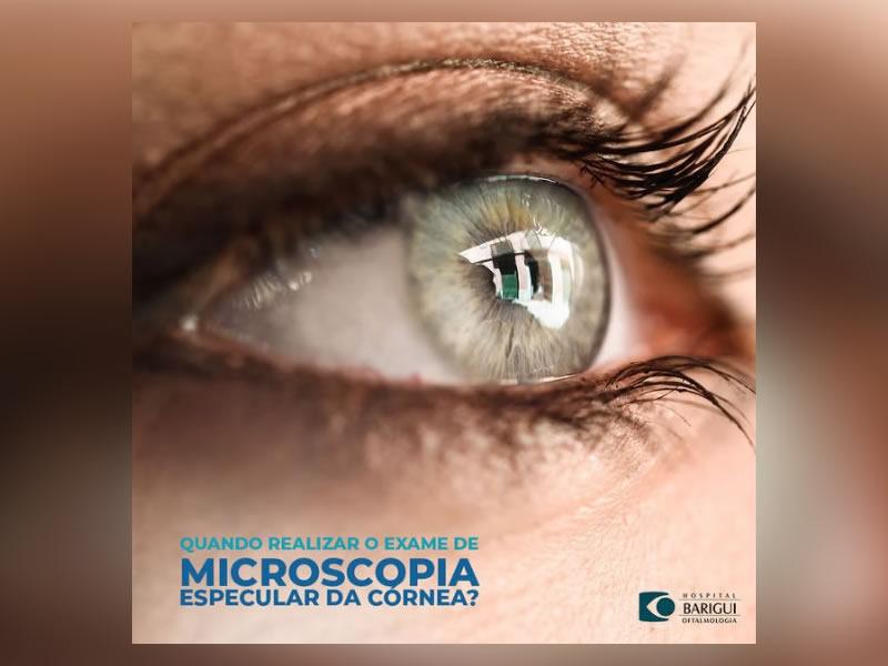 microscopia especular cornea em curitiba